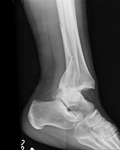 An image of an ankle before surgery,