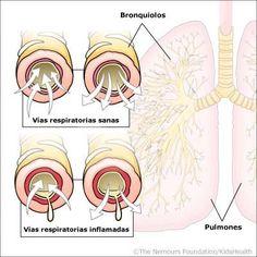 Profilaxis como medida de prevención de la bronquiolitis