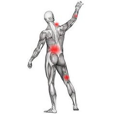 Advanced tutorial for both patients and professionals. Hundreds of muscle pain tips for tough cases.