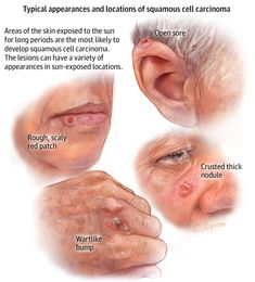 Do you know how to recognize squamous cell carcinoma? Dermatology Professionals 218-454-7546