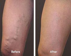 Infecção na perna ficando preta