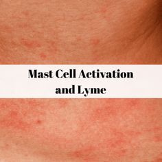 The agony of mast cell activation syndrome (MCAS) and Lyme Disease Lyme Disease Tick, Autoimmune Disease, Disease Symptoms, Bartonella Symptoms, Low Histamine Foods, Mast Cell Activation Syndrome, Health And Wellbeing, Juices, Soaps