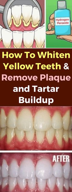 How To Whiten Yellow Teeth & Remove Plaque & Tartar Buildup! How To Whiten Yellow Teeth & Remove Plaque & Tartar Buildup! Teeth Whitening Remedies, Natural Teeth Whitening, Charcoal Teeth Whitening, Dental Care, Dental Teeth, Hydrogen Peroxide Teeth, Plaque Removal, Beauty Tips, Recipes