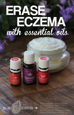 Erase Eczema with Essential Oils - Unskinny Boppy