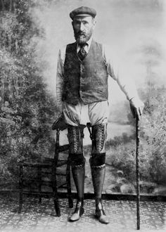 Artificial limbs from 1900 were decades ahead of their time