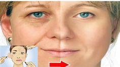 Las arrugas en la cara son el resultado del proceso de envejecimiento lento y constante. El rostro juvenil se vuelve opaco debido al proceso de envejecimiento. Es muy difícil luchar contra las arrugas y recuperar la piel suave y brillante. Hoy en día, muchas mujeres sufren de síntomas de envejecimiento antes de tiempo debido al …