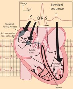 Great visual aid to help in the visualisation of the parts of an ECG (PQRST) Nursing School Notes, Nursing Schools, Lpn Schools, Cardiac Nursing, Respiratory Therapy, Physician Assistant, Medical Assistant, Nursing Tips, Nclex