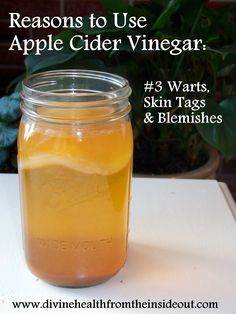 Reasons to Use Apple Cider Vinegar: #3 Warts, Skin Tags & Blemishes