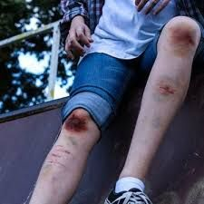 You'd think this would be from his crime fighting. Tim tripped UP the stairs. George Denbrough, Guzma Pokemon, Survival, Carl Grimes, Osho, Ravenclaw, It Hurts, Blood, The Originals