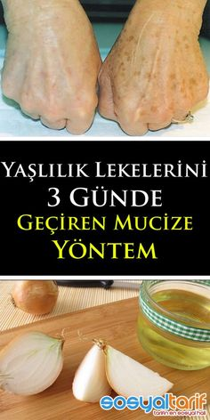 Onion Cure Miracle For Stains On Hand - For Stains On Hand .- Eldeki Lekeler İçin Soğan Kürü Mucizesi- Eldeki Lekeler İçin Soğan Kür… Onion Cure Miracle for Hand Stains – Onion Cure Miracle for Hand Stains – # electricfacialcleansers is financing - Natural Remedies For Heartburn, Herbal Remedies, Beauty Skin, Health And Beauty, Facial Cleansers, Homemade Skin Care, Diet And Nutrition, Natural Skin Care, Health Tips