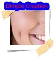 Dimple Creation Thailand | Bangkok-Plastic Surgery