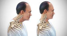 Text Neck pain is caused by the strain placed on the neck and upper back due to texting while looking down. Chiropractic Care relieves pain by correcting the misalignments in the neck. Bad Neck Posture, Posture Fix, Fitness Workouts, Easy Workouts, Workout Routines, Scoliosis Exercises, Posture Exercises, Neck And Back Pain, Neck Pain