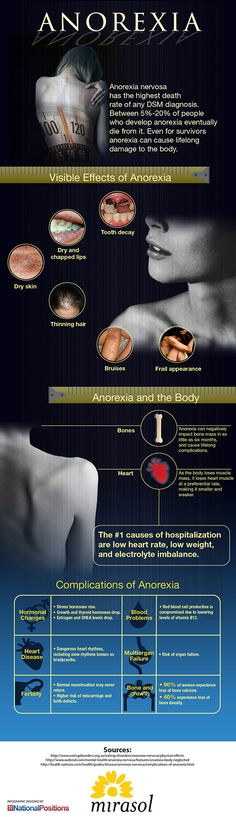 Anorexia And Your Body Information & some of the signs of anorexia.
