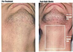 14 Best Hair Removal For Men Images Mens Hair Removal Hair