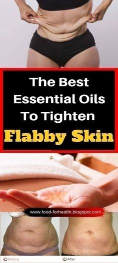 Here are 6 best essential oils to tighten flabby skin fast! Tighten Stomach, Tighten Loose Skin, Healthy Skin Care, Healthy Beauty, Doterra, List Of Essential Oils, Skin Elasticity, Skin Tightening, Oils For Skin