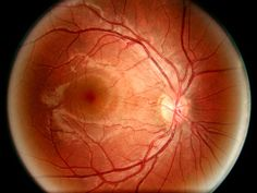 National Geographic photo of the retina