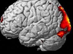 חוקרים תיעדו פעילות מוחית בעת חוויה חוץ גופית - בריאות