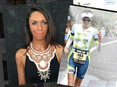 Pahat+palovammat+saanut+nainen+inspiroi+toteutettuaan+unelmansa+–+selvitti+vaativan+kilpailun