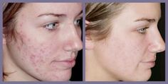 Being the reason for you to lose confidence?Say no more,with the latest acne scar removal treatment from Schweiger Dermatology ,you can once again have that flawless model like skin. Severe Acne Treatment, Adult Acne Treatments, Scar Treatment, Best Acne Treatment, Skin Treatments, Laser Acne Scar Removal, Scar Remedies, Natural Remedies, Hair And Beauty