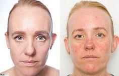 Jornalista fica um mês sem tirar a maquiagem e pele envelhece 10 anos DICA : LOÇÃO DE LIMPEZA http://www.geraldosouzamagazine.com.br/cuidadosfaciais/rostolinhasummus/summus-loc-o-tonica-com-espuma-150-ml.html