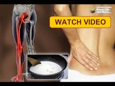 Take This And You Will Never Suffer The Sciatica And The Back Pain - YouTube