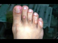 Mira Como quitar los callos de los dedos de los pies - Callos en los pies remedios caseros - YouTube