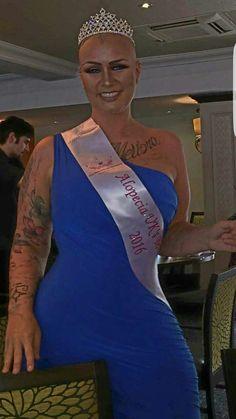 Wigless... alopecia uk bombshell crowning