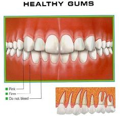 Home Remedies for healthy gums. Forget the alcoholic listerine. Stick to tea tree oil, coconut oil, green tea, and others!