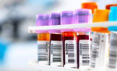 New blood test to predict risk of preeclampsia