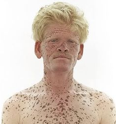 60 Best White is beautiful (Albino's) images | Albino ...