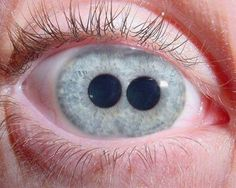 The Pupula duplex is a medical oddity that is characterized by having two irises/ pupils in each eyeball. This is quite creepy
