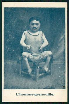 "1910 French real picture postcard for a sideshow ""Frog Man"" Antique Photos, Vintage Photos, Freak Show Circus, Dwarfism, Human Oddities, Freaks And Geeks, Circus Performers, Bizarre, Picture Postcards"
