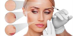 Are you looking for best Botox treatment in U.S.Consult our professionals for the proper guidance and injections to get better results.To know more examine the given link or call us on :(208) 505-0093.   #botoxBoise