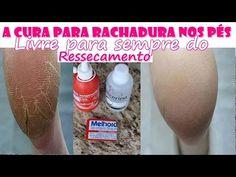 Como acabar de vez com RACHADURA NOS PÉS - Na 4º aplicação o pé já está curado! - YouTube