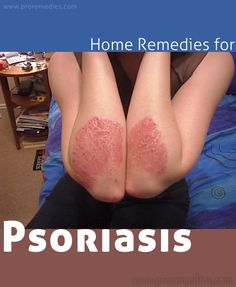 That looks so painful../: Home Remedies For Psoriasis