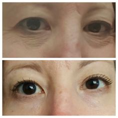 Ideal Eyes after 1 month