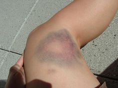 bruise - Google Search