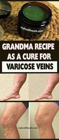 Grandma Recipe As A Cure For Varicose Veins - Healthy Women Health Tips For Women, Health Advice, Health And Beauty, Health Care, Beauty Skin, Women Health, Health Lessons, Gut Health, Mental Health