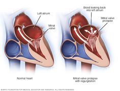Learn more about the symptoms, diagnosis and treatment of this condition in which the heart's mitral valve leaks backward. Prolapso Da Válvula Mitral, Mitral Valve Regurgitation, Mitral Valve Prolapse, Acute Coronary Syndrome, Cardiac Rhythms, Marfan Syndrome, Cardiac Catheterization, Heart Valves, Polycystic Kidney Disease