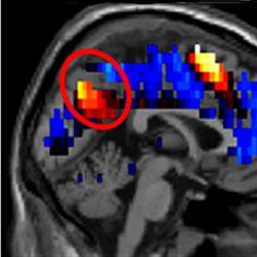 Percée : diagnostiquer l'autisme (de haut niveau) à partir d'images cérébrales liées aux pensées sociales   PsychoMédia