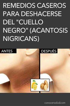 Remedios caseros para deshacerse del cuello negro (acantosis nigricans) #salud Acantosis Nigricans, Beauty Hacks, Beauty Tips, Natural Beauty, Health Fitness, Red, Frases, Health Tips, Dark Spots