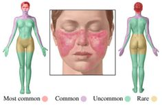 Systemic Lupus Erythematosus – Causes and Treatment