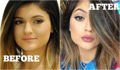 maxresdefault.jpg let see, brow lift, fat injected into her fish now lips that she selfie's all the time, she can't get enough of the selfie and pouting her fatty lips.