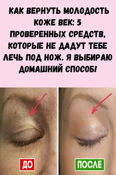 Creme Anti Age, Mistress, Beauty Hacks, Health Fitness, Weight Loss, Face, Group, Health Care, Eyelashes