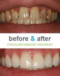 White, uniformly shaped teeth boost the charm of your face. Cosmetic dentistry offers numerous treatment choices for individuals who wish to enhance their teeth. Teeth Implants, Dental Implants, Dental Hygienist, Cosmetic Dentistry Cost, Tooth Extraction Healing, Teeth Health, Oral Health, Porcelain Veneers, Emergency Dentist