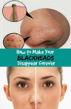 Women's Mag Blog: How to Make Your Blackheads Disappear forever