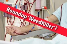 Dramatic Increase in Kidney Disease in the US and Abroad Linked To Roundup (Glyphosate) 'Weedkiller'