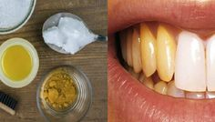 Reverse Gum-Disease, Swelling and Kill Bacteria With This Turmeric Anti-Inflammatory Paste