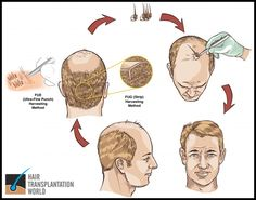 """If you are looking foreword to hair hair transplant .Firstly need to know about all the things of hair transplant. To Know all read Blog on """"Things to learn when you are going for Hair Transplant Surgery in Delhi"""""""