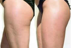 Additionally, you can likewise develop cellulite if you do not work out adequate or if you don't see what you consume really thoroughly. Food rich in carbs, fats, and low-fiber food boost fat storage in the body and triggers cellulite. Bye Bye Cellulite, Cellulite Scrub, Cellulite Cream, Cellulite Workout, Causes Of Cellulite, Anti Cellulite, Lose Weight Naturally, How To Lose Weight Fast, Detox